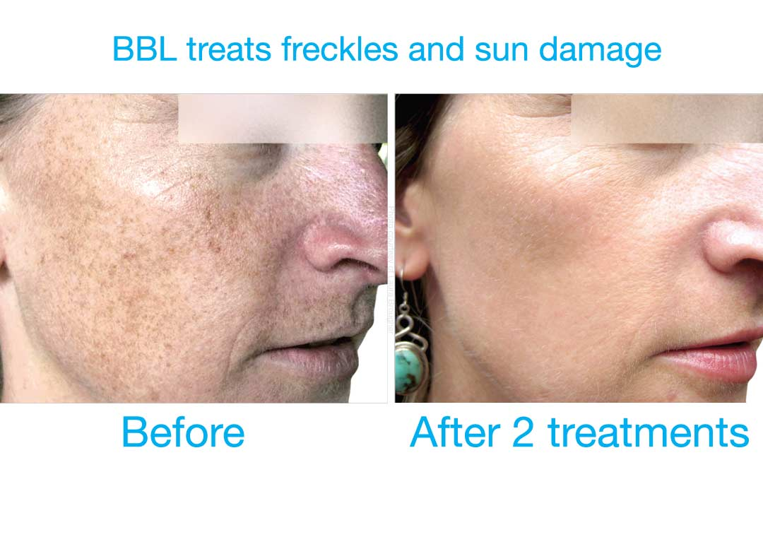 BBL at Bravia Dermatology treats freckles and sun damage very effectively.
