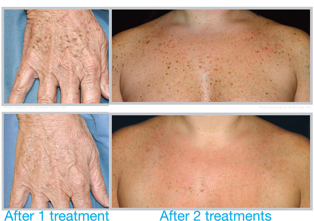 BBL corrects sun damage and dyspigmentation on hands and body. Bravia Dermatology offers BBL