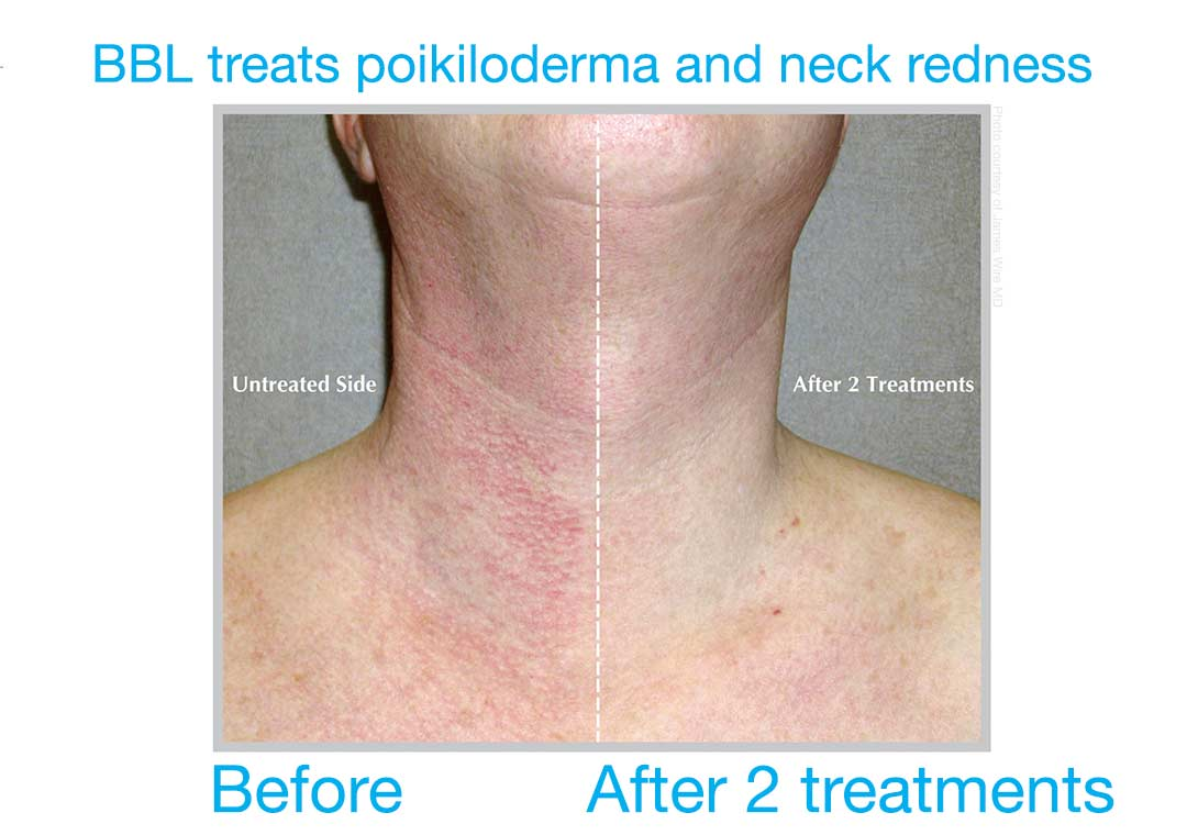 Neck redness and sun damage (Poikiloderma) can be successfully treated with BBL