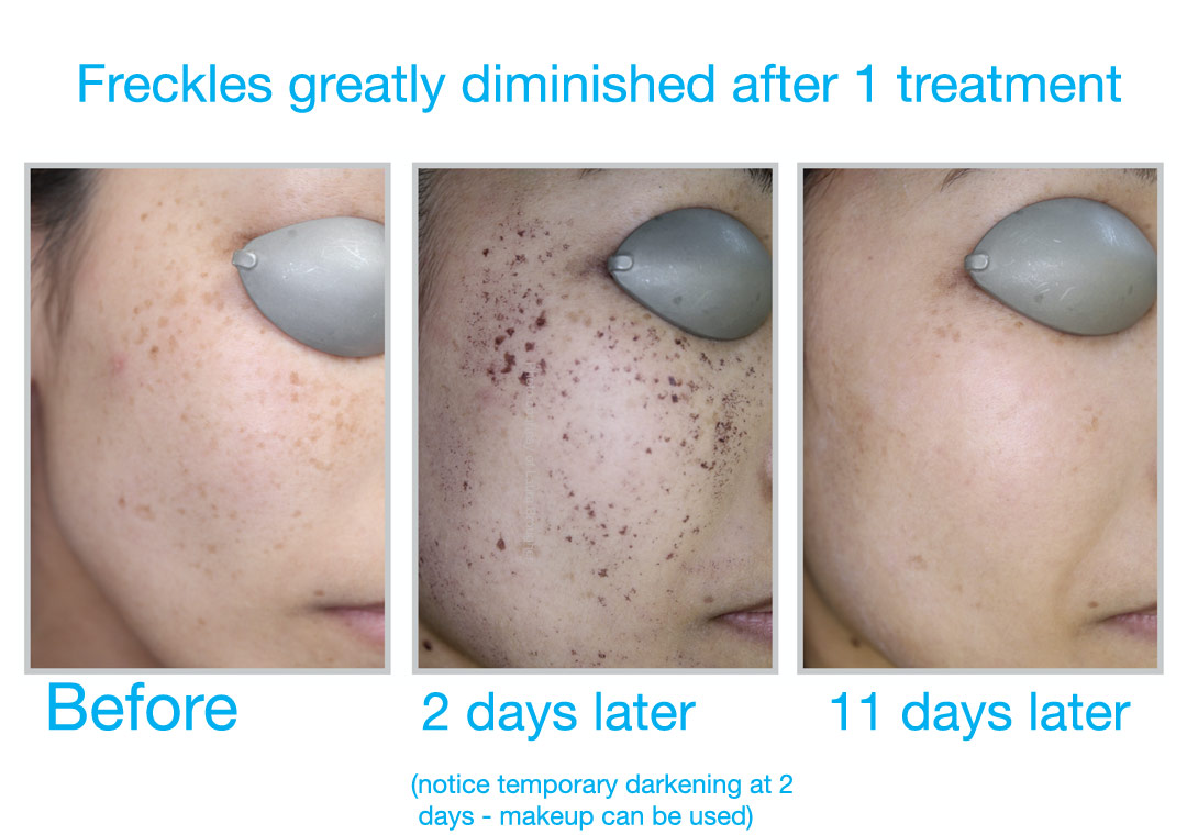 Sun damage and freckles can be treated with BBL at Bravia Dermatology