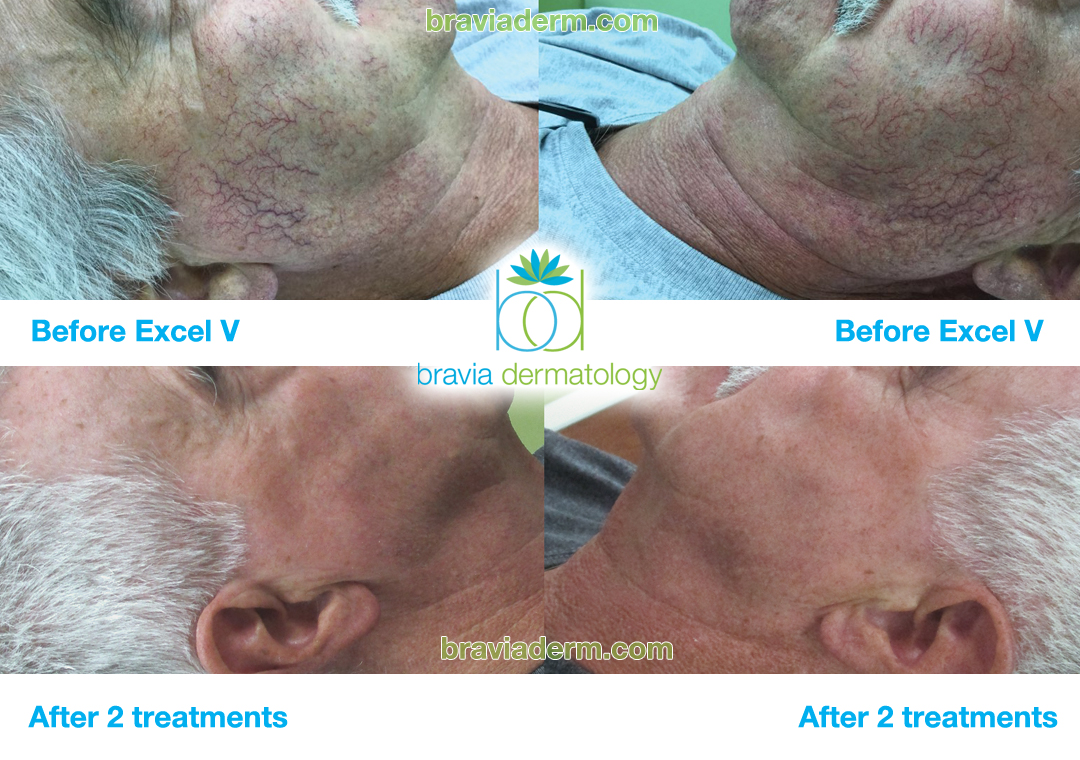 Excel V at Bravia Dermatology works great for cheek veins and telangiectasias