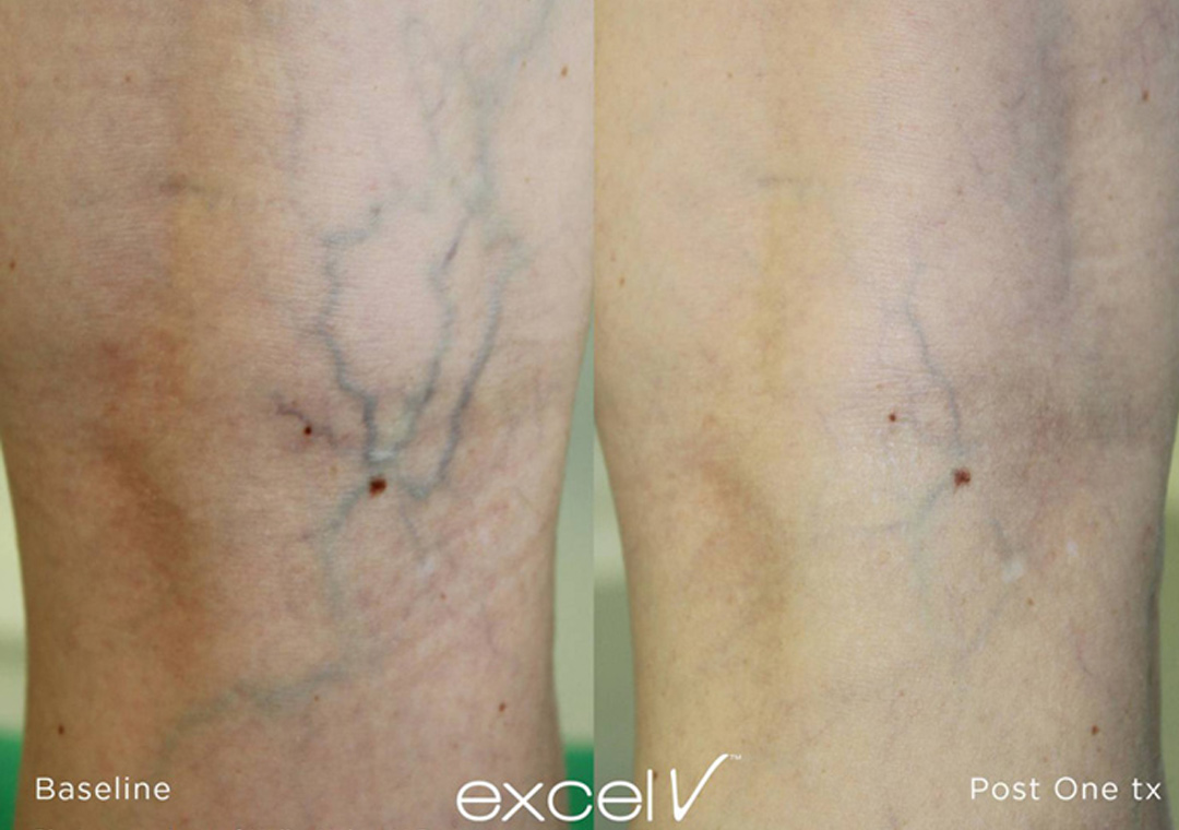 Leg veins can be diminished with Excel V