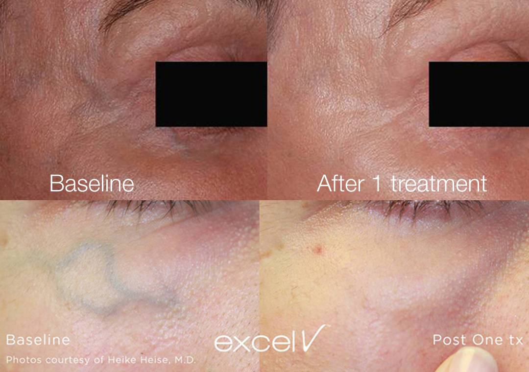 Periorbital veins, or veins around the eyes, disappear with Excel V