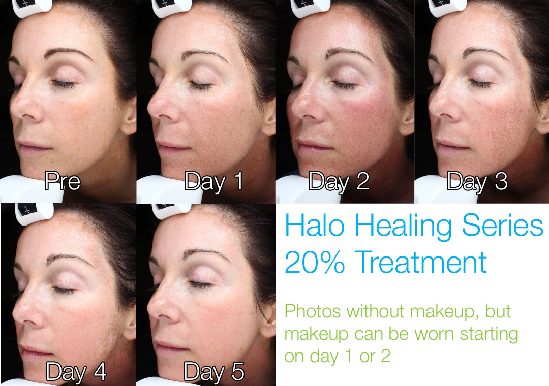 Halo at 20% - This demonstrates a medium treatment with very little swelling, and no oozing. Makeup can be worn the next day. Progress continues to occur for several months after treatment.