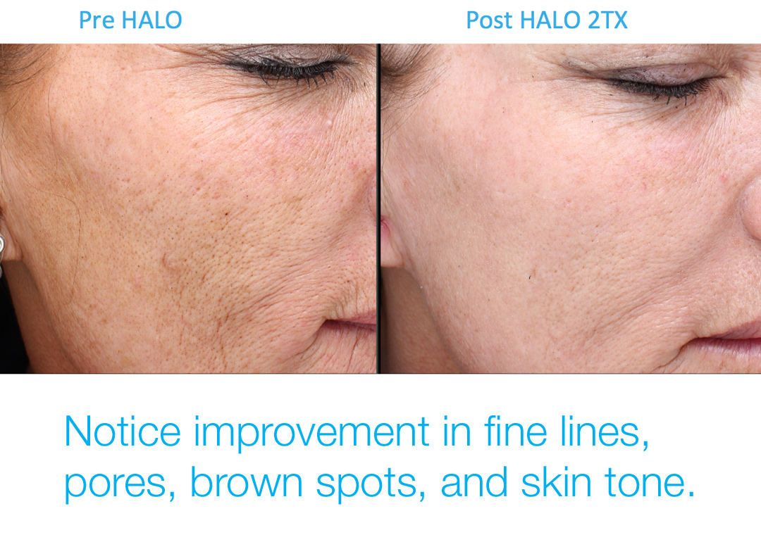 Halo improves fine lines, skin texture, pores, brown spots.