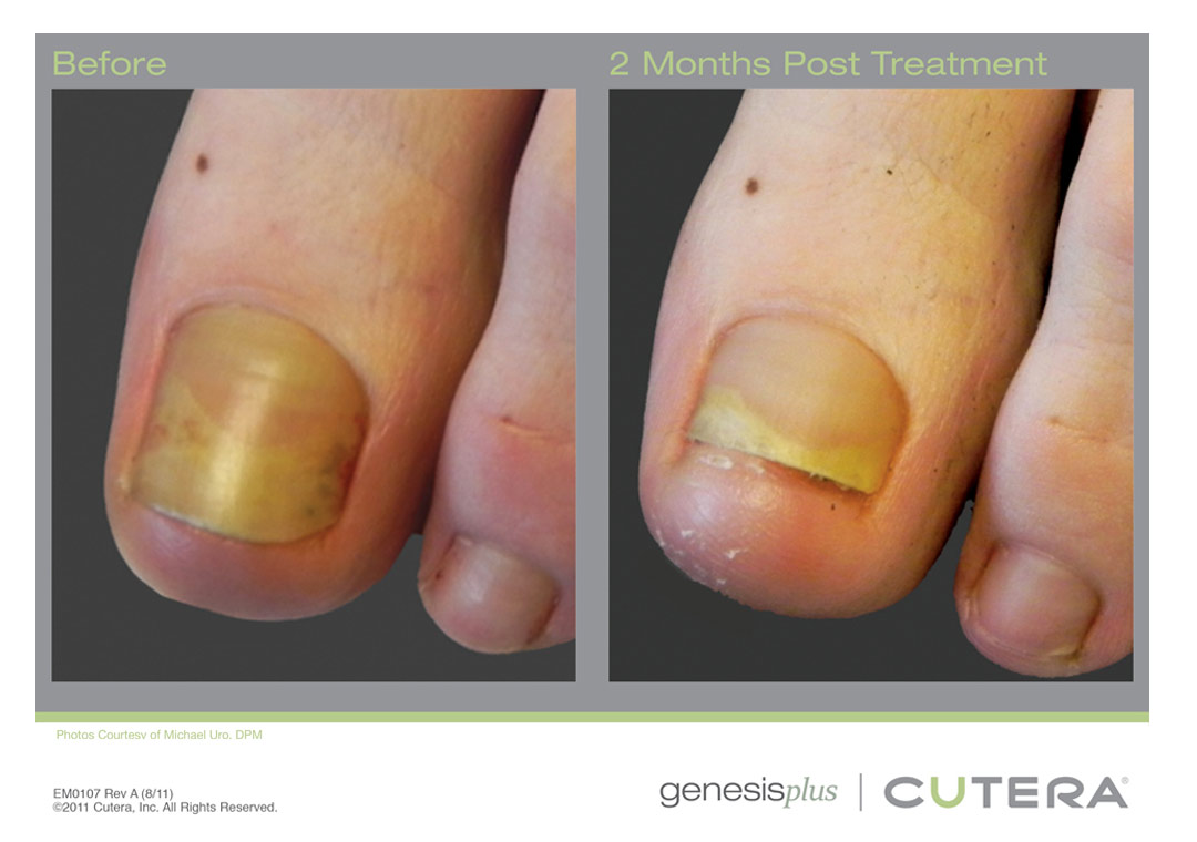 Laser Genesis treats nail fungus. Plan on at least 3 treatments.  The nail will slowly grow out.