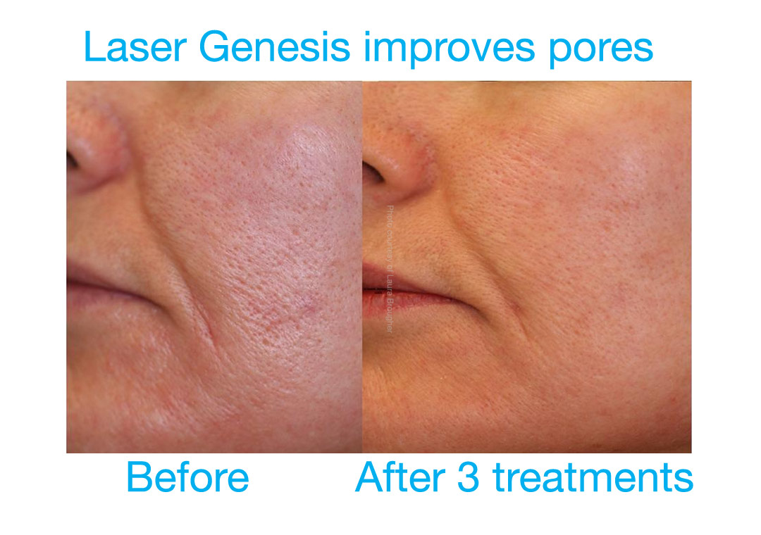 Laser Genesis improves pores and skin texture without downtime.
