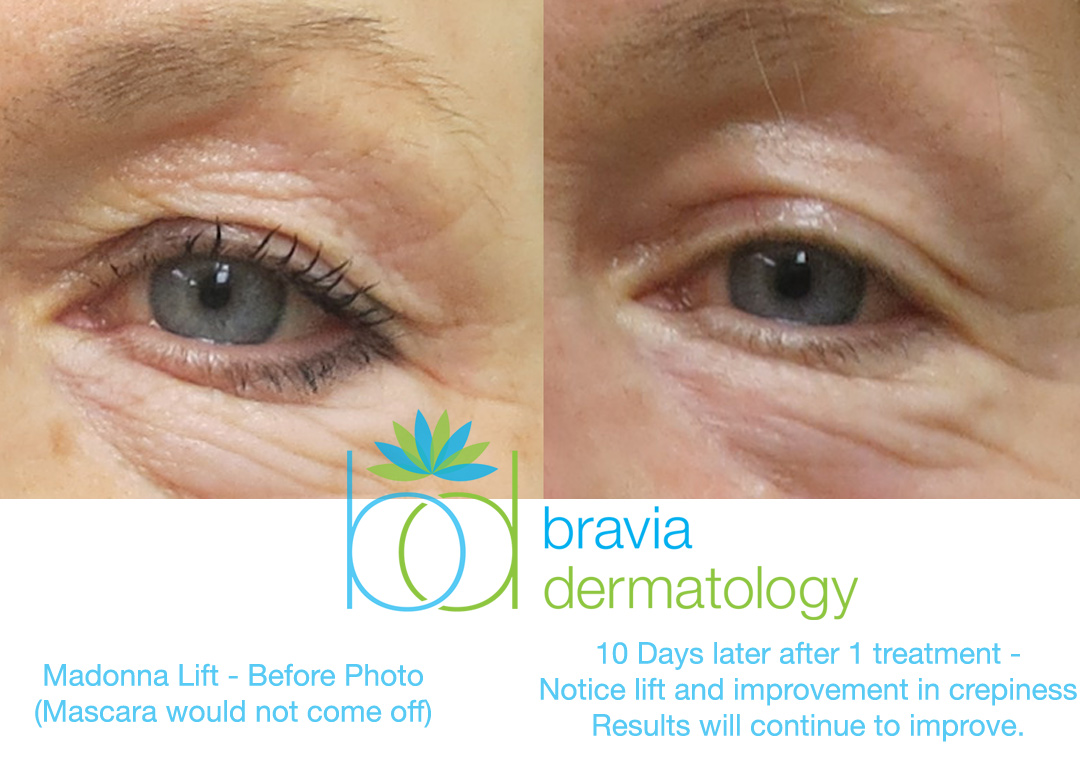 Madonna Lift at Bravia Dermatology for non-surgical improvement of sagging eyelid skin.  Notice the improvement of crepiness.