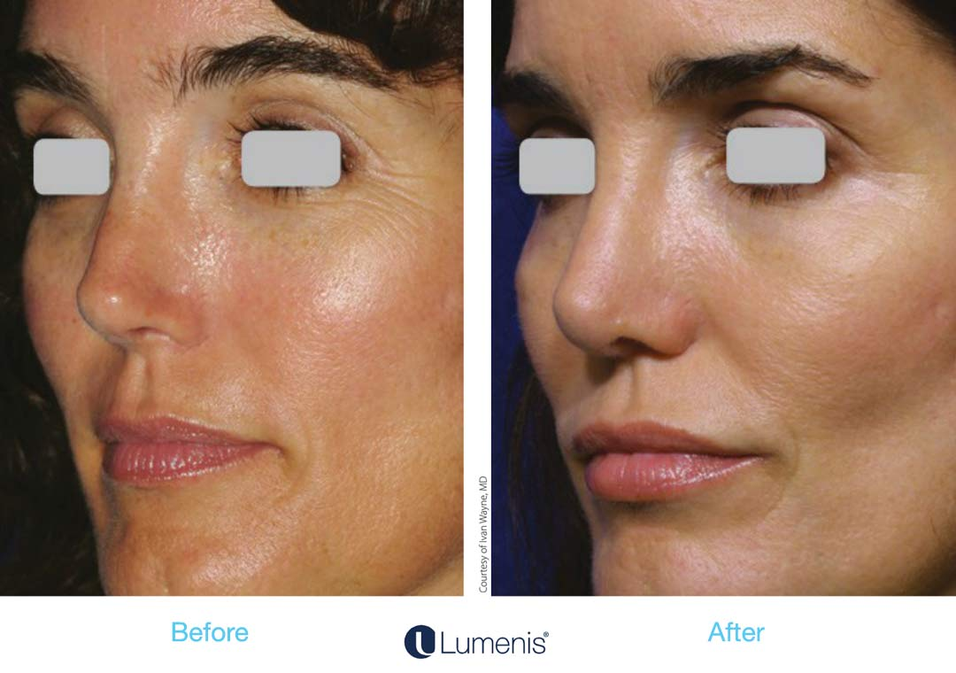 Skin texture improves with diminished pores and smoothed lumps and bumps, like sebaceous hyperplasias