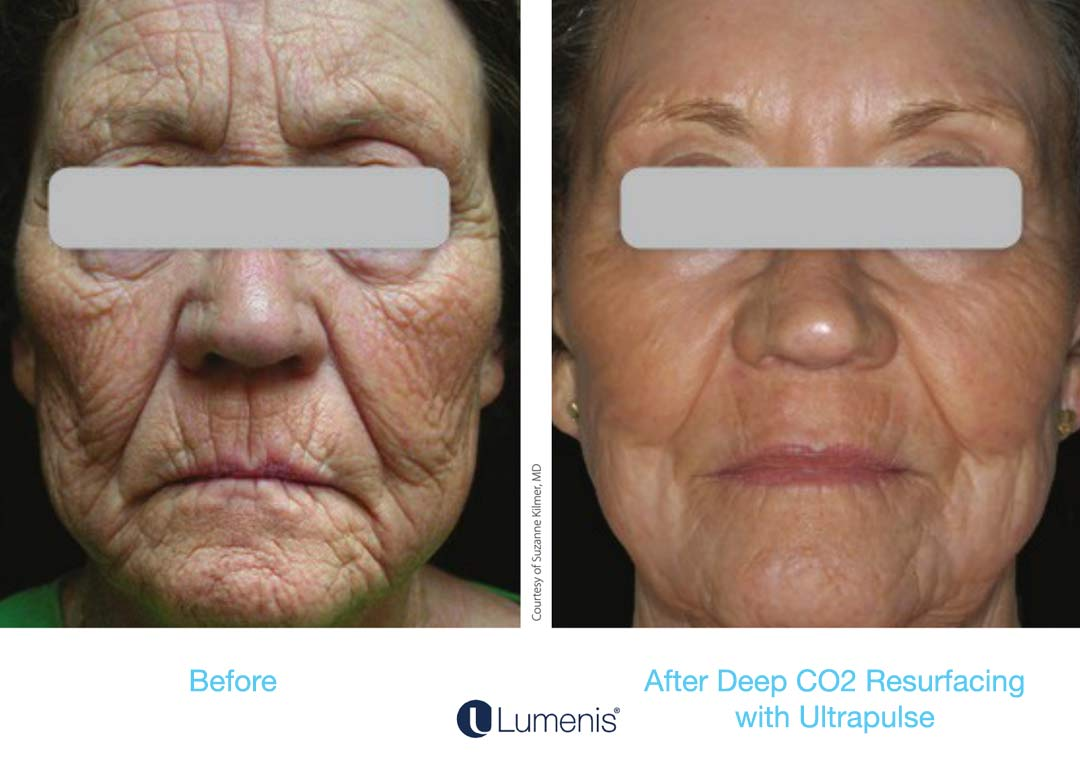ActiveFX and DeepFX are amazing for wrinkles caused by volume/collagen loss, sun damage, and age.