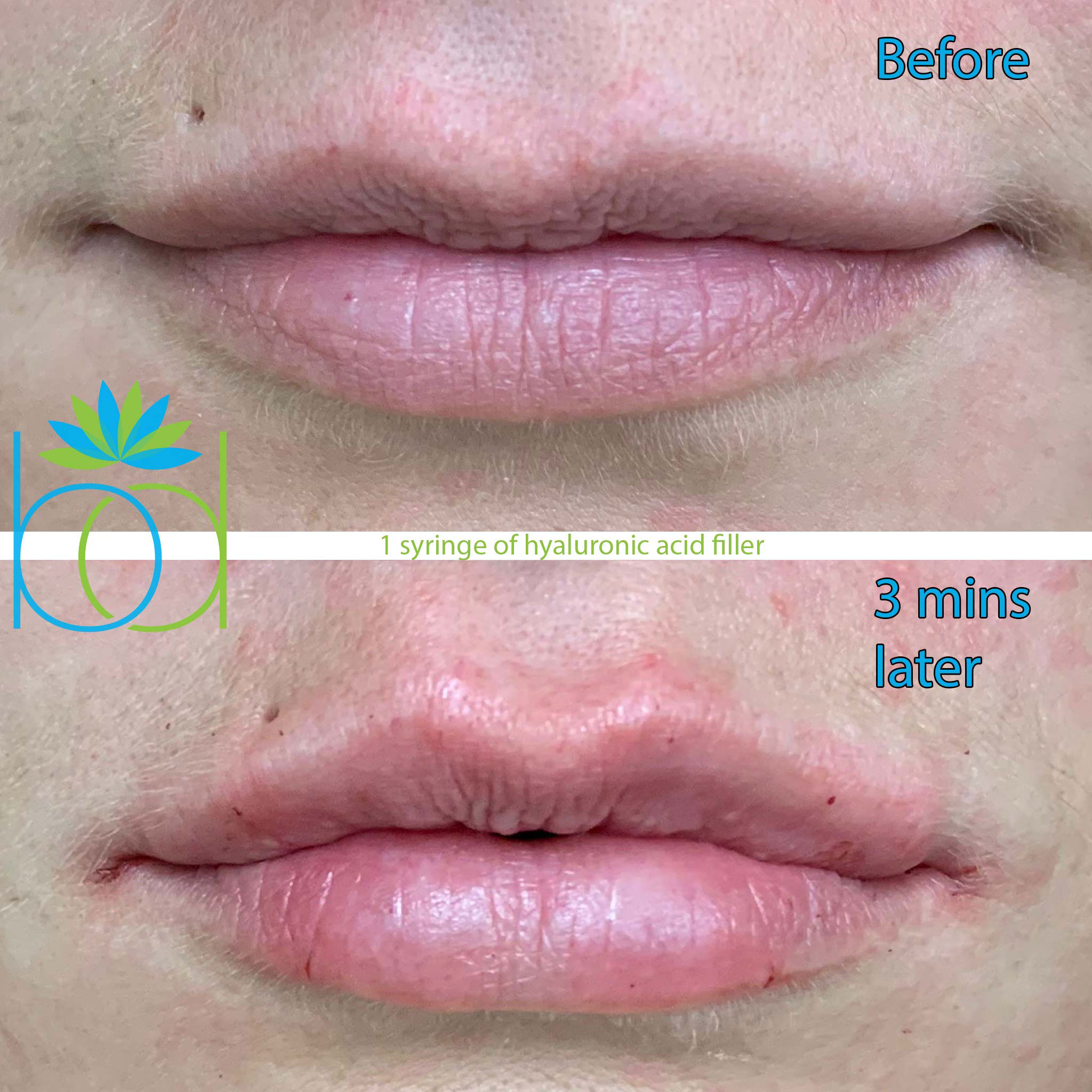 Before and After Hyaluronic Acid lip filler, Three minute transformation.