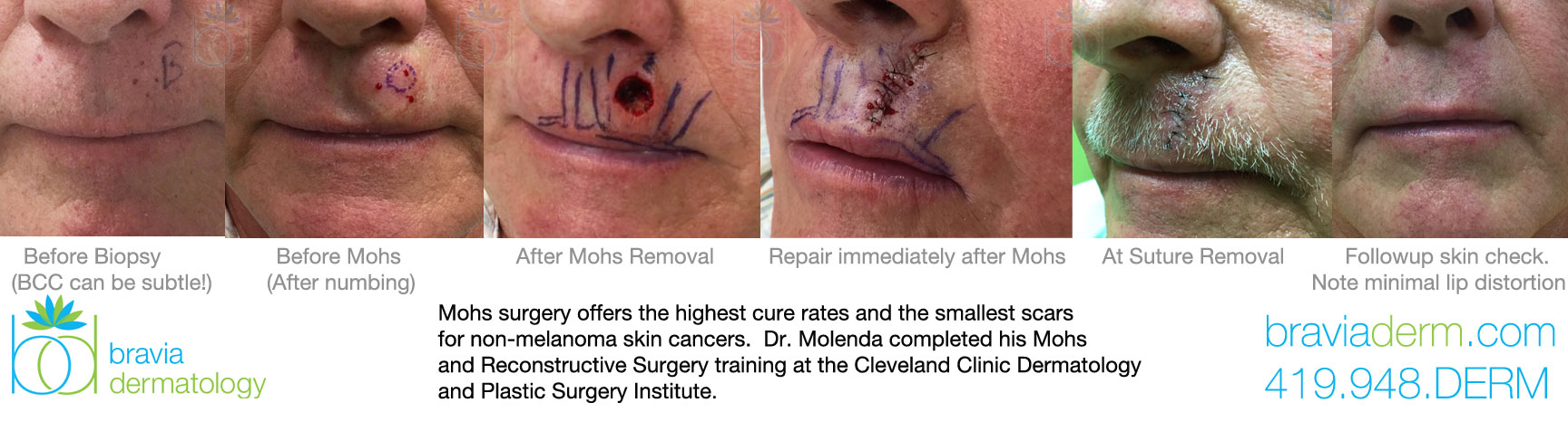 Mohs Surgery offers the highest cure rates and the smallest scars.