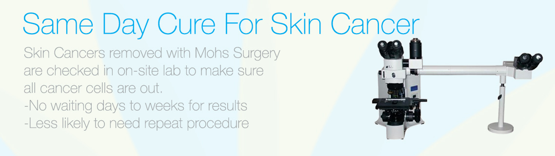 Mohs Surgery can offer a same day cure for skin cancer at Bravia Dermatology