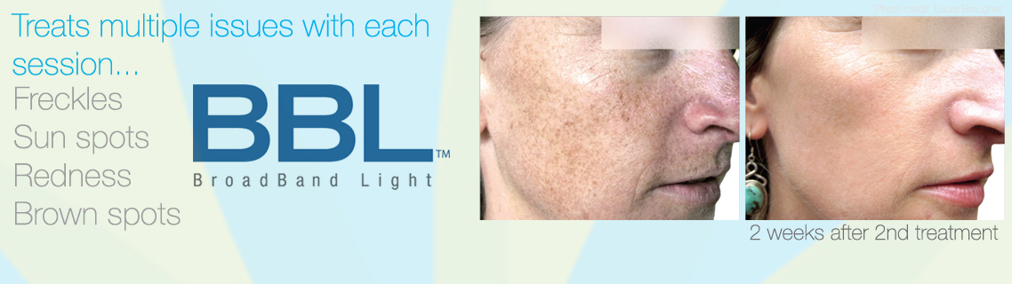 BBL at Bravia Dermatology treated freckles, sun spots and redness